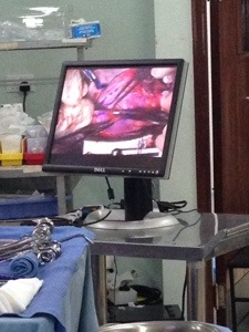 Monitor showing what Dr. Turrentine sees in the OR