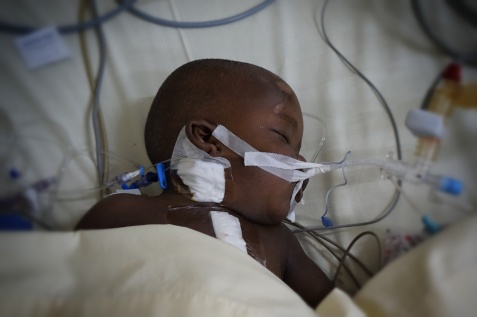 Thomas resting after his AC+V Canal repair. Thanks to Cook Medical for the central IV catheters used for our IJ lines!
